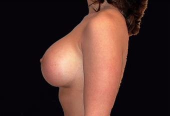 Breast augmentation and vertical mastopexy