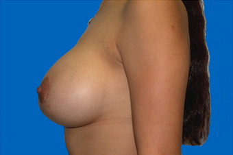 breast augmentation  with full mastopexy