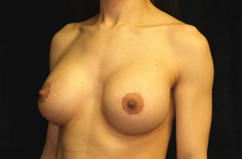 breast augmentation and mastopexy