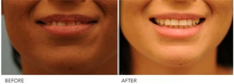Upper Lip Reduction for Traumatic Lip Deformity