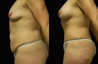 Tummy Tuck and Breast Augmentation, gel implants