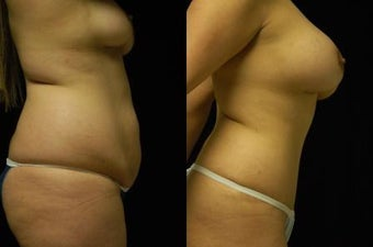 Tummy Tuck and Breast Augmentation- gel implants