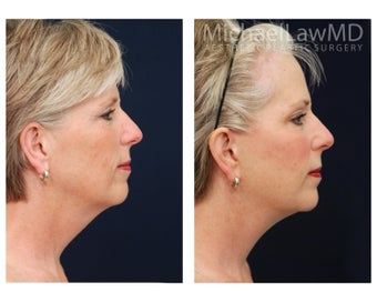 Facial Rejuvenation - Brow Lift