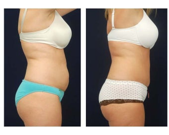 Abdominoplasty - Tummy Tuck