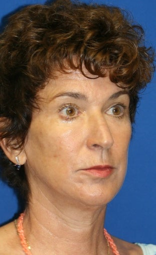 Facelift, Lateral Browlift, Fat Transfer, Chemical Peel