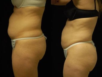 Smartlipo MPX abdomen, waist and flanks
