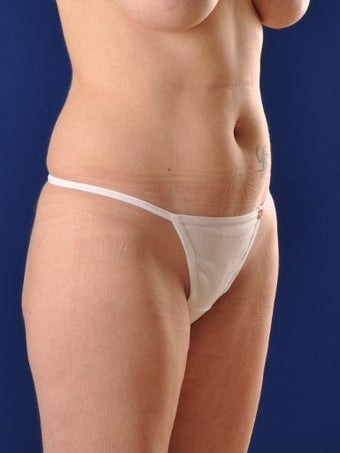 Vaser Hi Def Liposuction of abdomen, thighs, flanks and back with fat injections to buttocks