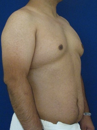 Vaser Hi-Def Liposuction of abdomen, chest, back and flanks