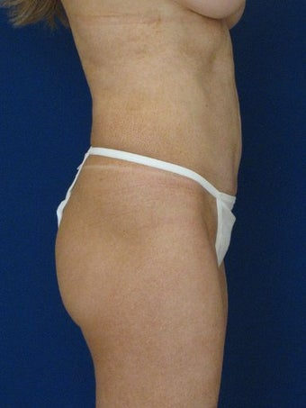 vaser Hi Def Liposuction of chest, abdomen, back and flanks