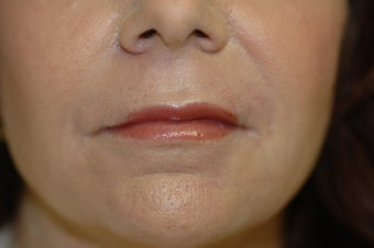 Laser skin resurfacing, eyelid surgery, lip augmentation