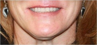 Lip augmentation - juvederm