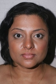 Asian Rhinplasty