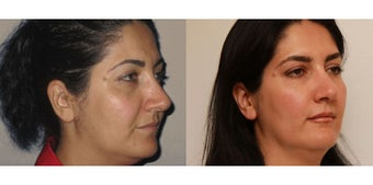 Facial Rejuvenation, non-surgical