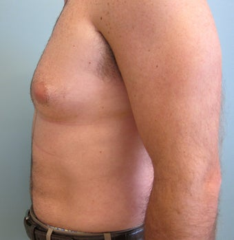Liposuction of Abdomen, Love handles, Flanks, Chest