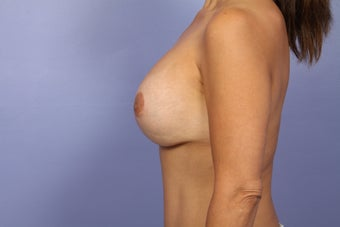 Mommy Makeover- Breast Augmentation