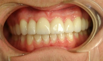 porcelain bridge with veneers replacing teeth