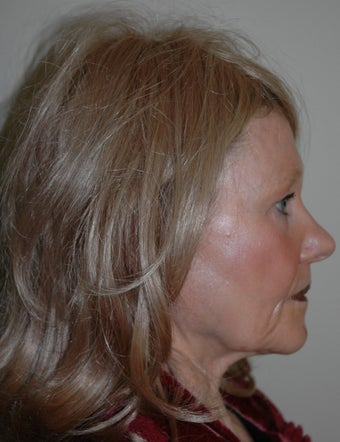 High SMAS Face Lift, Neck Lift, Perioral Dermabrasion