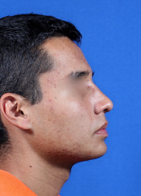 nasal airway surgery with cosmetic improvement