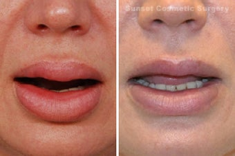 Lip Reduction and Repair