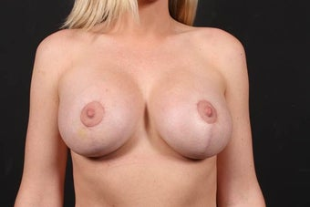 Areola reduction