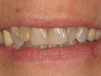 12 Porcelain Veneers