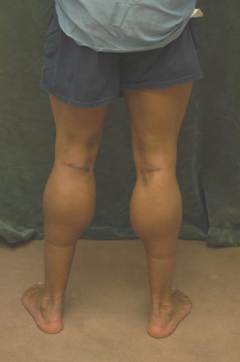 Men's Calf Augmentation
