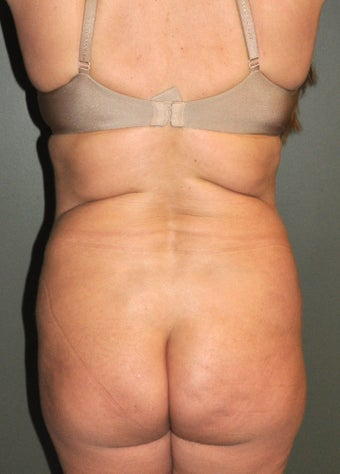 Body Liposuction