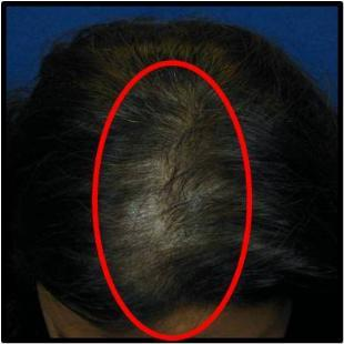Female Hair Restoration