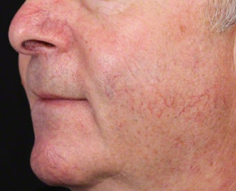 Vbeam for Facial Veins