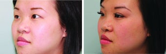 Double Eyelid Surgery Suture
