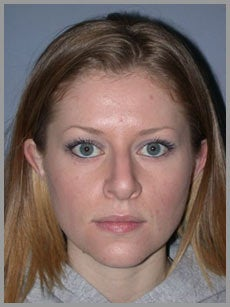 Nose Surgery, Rhinoplasty