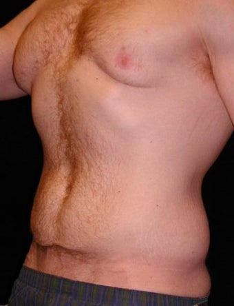 Male Tummy Tuck, Flank Liposuction, Male Breast Reduction
