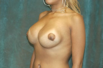 Women's Breast Augmentation: Redo