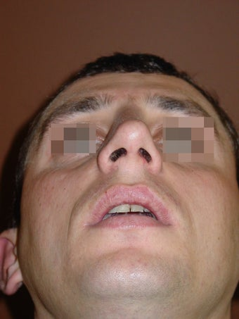 Crooked nose correction