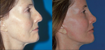 Facelift, rhinoplasty, endo forehead lift, fat injection, laser