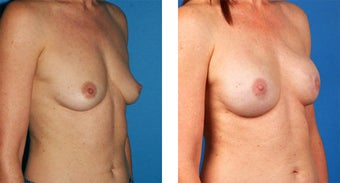 Breast Reconstruction: One-Stage Breast Reconstruction