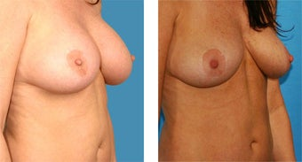 Breast Implant Removal with Internal Lift