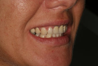Dental crowns, dental implants, dental veneers