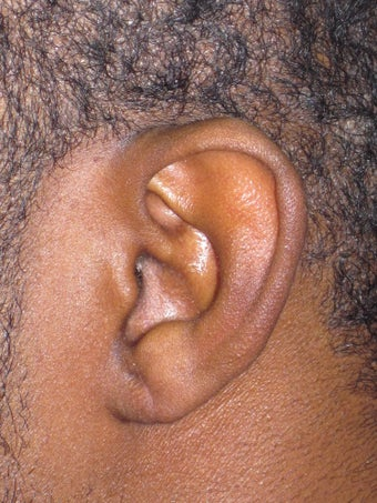 Torn Earlobe Repair
