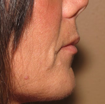 Lip lift - permanent lip enhancement