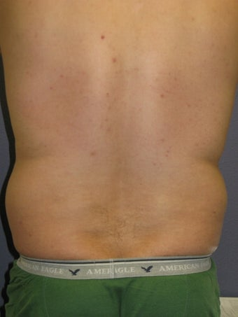 Liposuction Male