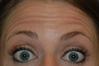 Botox injected in between the eyebrows and into the forehead