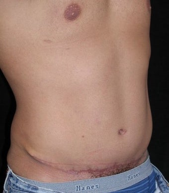 Male tummy Tuck, Flank Liposuction