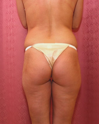 Brazilian buttock augmentation with fat grafting to the buttocks with liposuction in Los Angeles