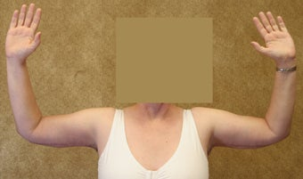 Brachioplasty or arm tuck