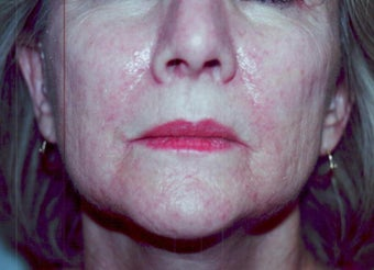 SmartXide CO2 Laser Resurfacing (DOT Therapy)