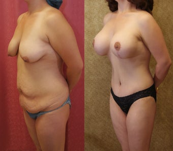 Tummy tuck with breast lift
