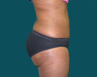 Buttocks augmentation with implants and fat grafting