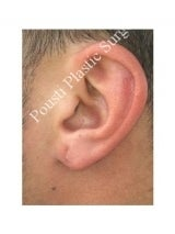 Earlobe Repair Surgery