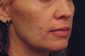 Yag Laser Skin Tightening